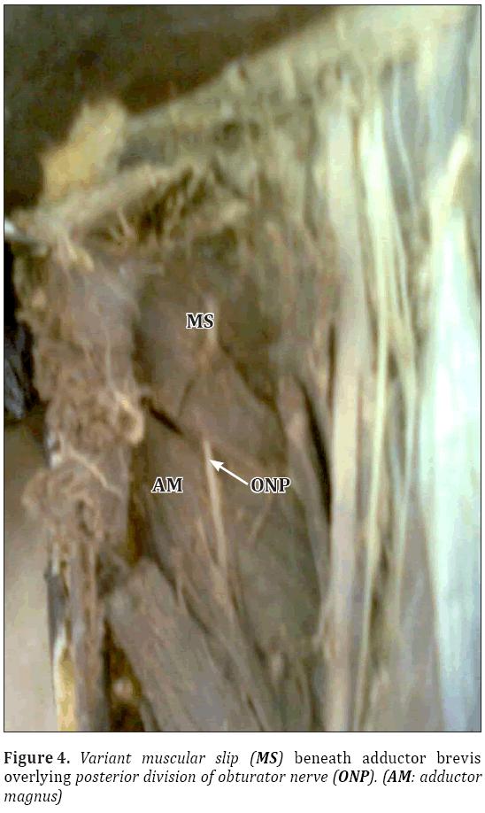 Anatomical-Variations-Variant-muscular-slip