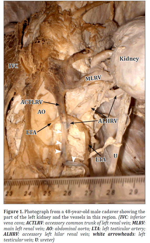 Looped Left Testicular Artery In Relation To A Variant