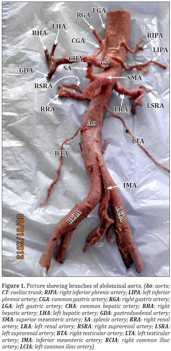 Anatomical-Variations-branches-abdominal-aorta