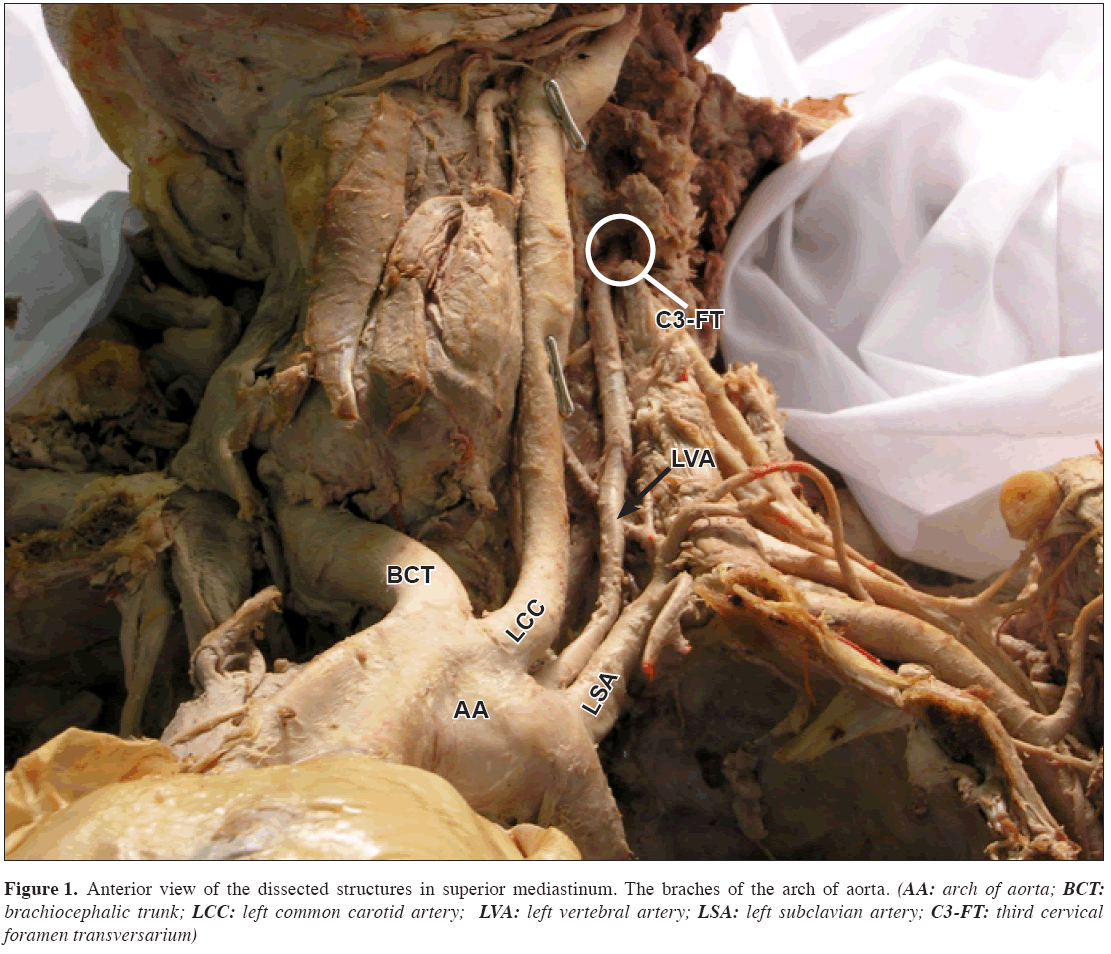 Anatomical variation of the origin of the left vertebral artery