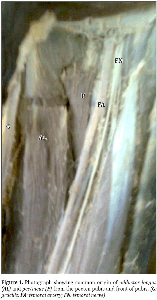 Anatomical-Variations-common-origin-adductor