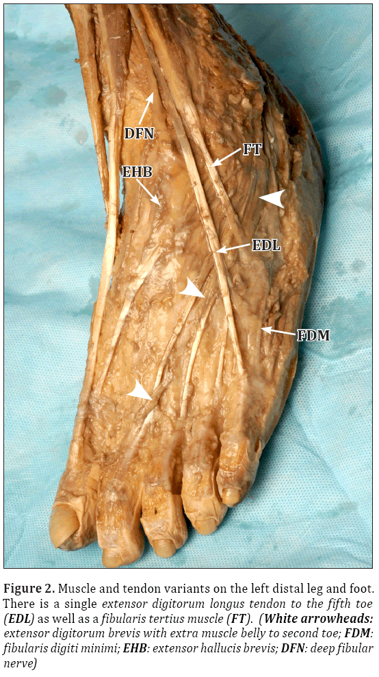 unilateral absence of an extensor digitorum longus muscle and