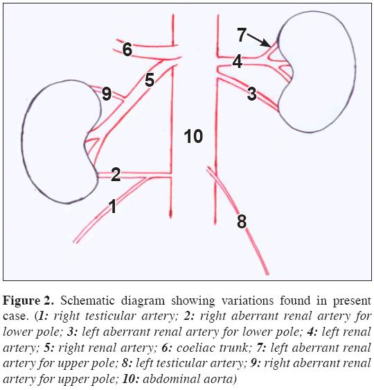 Variant origin of right testicular artery – a rare case