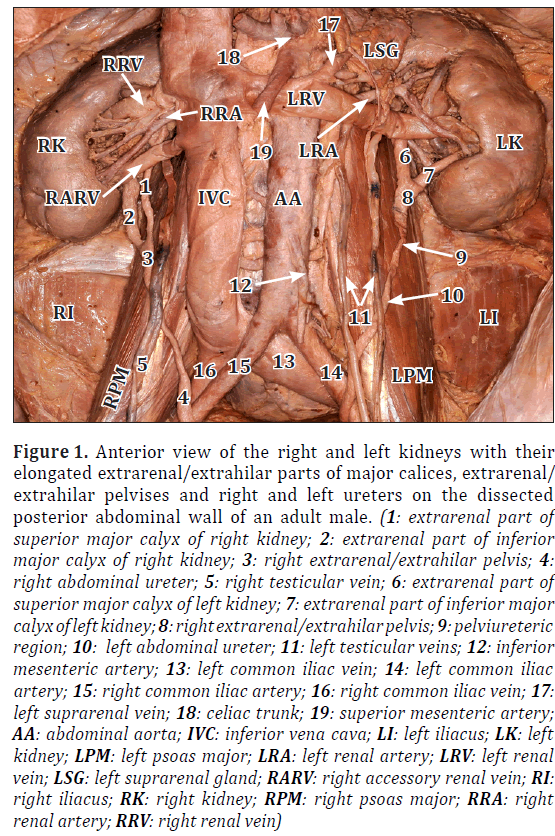 anatomical-variations-Anterior-view
