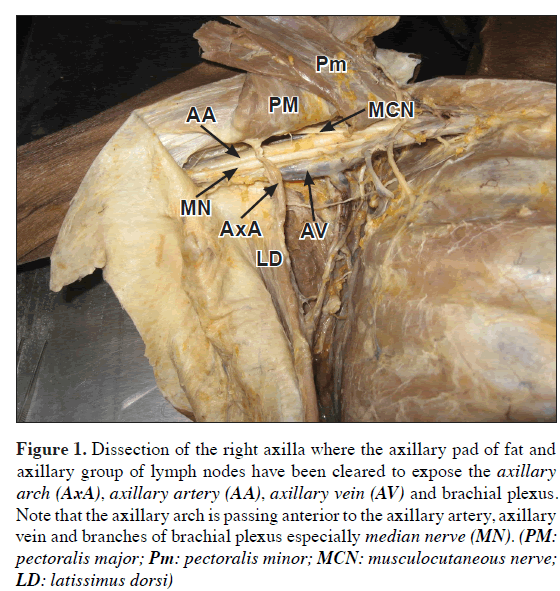 An unusual case of axillary arch bridging across the anterior and ...