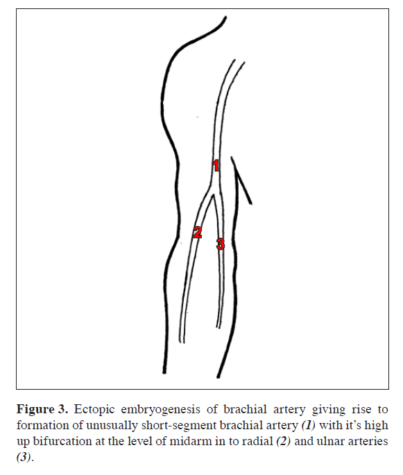 Brachial Artery With High Up Division With Its Embryological Basis