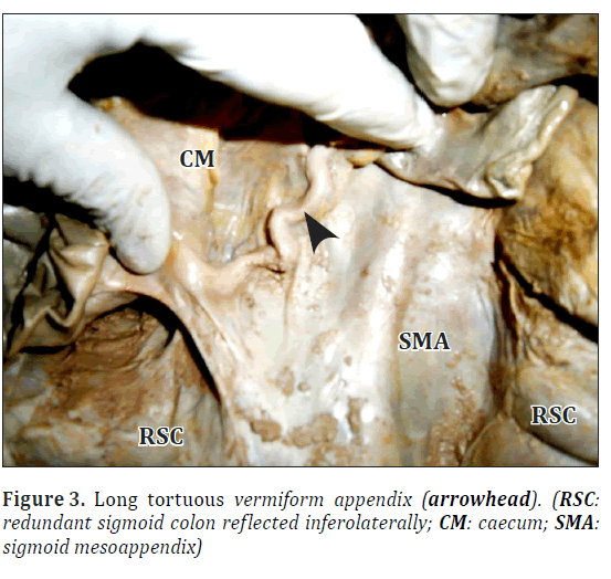 Pre-omental epigastric redundant sigmoid colon: a case report and