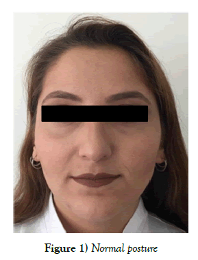 Bilateral dimples that are rarely seen in the lower alignment of the