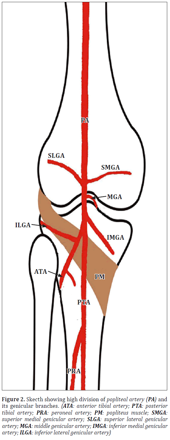 High division of the popliteal artery – a case report