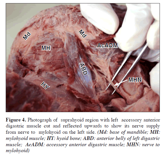 a variant digastric muscle, Muscles