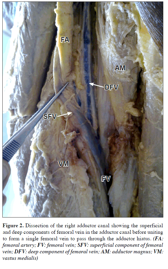 Duplication Of Femoral Vein And Its Significant Clinical Implications