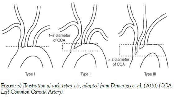 anatomical-variations-arch-types