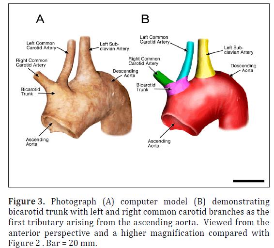 anatomical-variations-common-carotid