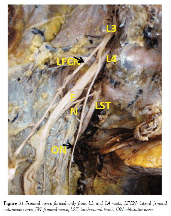 Study of formation of pelvic somatic nerves