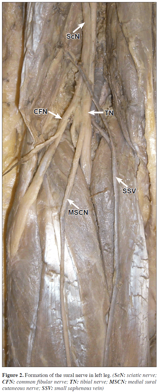 Bilateral variations in the formation of sural nervetibial