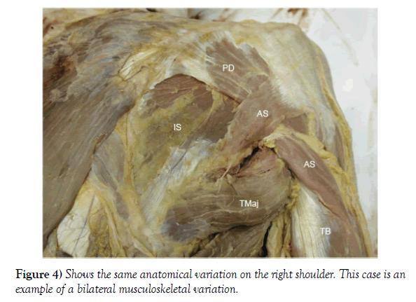 anatomical-variations-musculoskeletal-variation