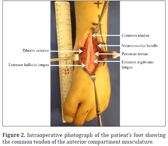 Common tendon of the musculature of the anterior compartment of the leg