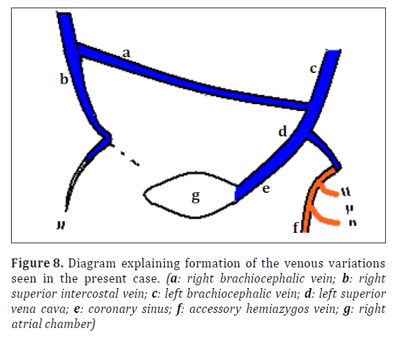 anatomical-variations-present-case