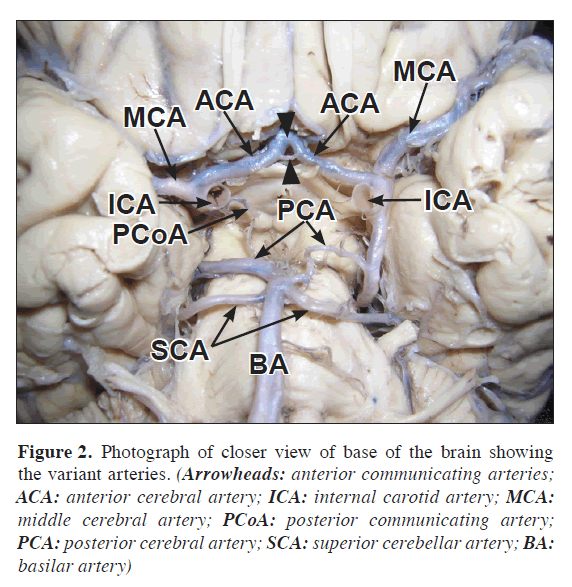 Variant Arteries At The Base Of The Brain
