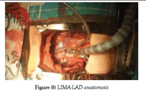 clinical-cardiology-LIMA-LAD