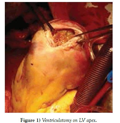 clinical-cardiology-Ventriculotomy