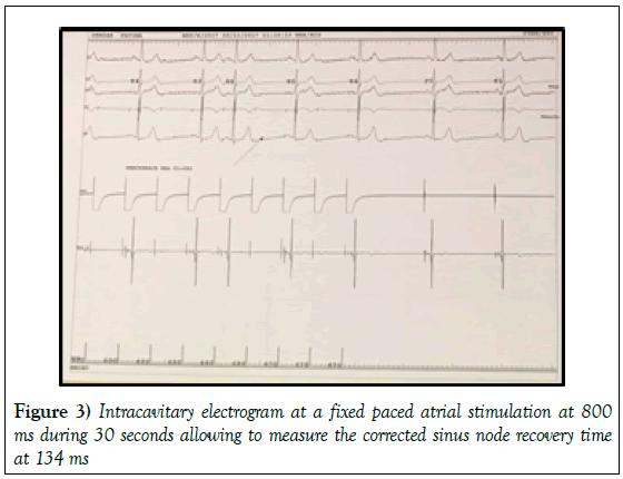 clinical-cardiology-atrial-stimulation