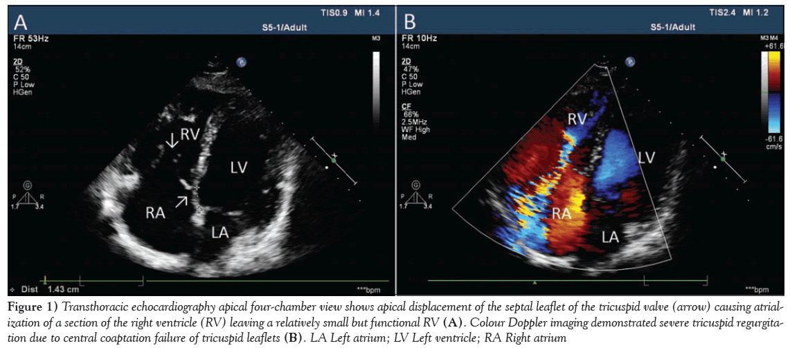 current-research-cardiology-Transthoracic-echocardiography