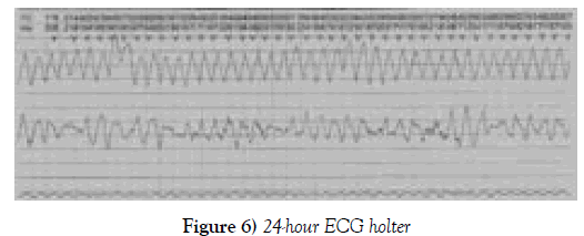 current-research-cardiology-ecg-holter