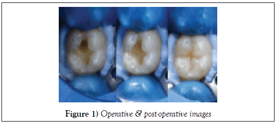 dentistry-case-report-post-operative