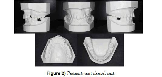 dentistry-dental-cast