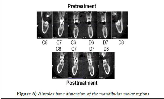 dentistry-mandibular-molar
