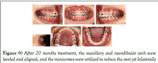 dentistry-months-treatment