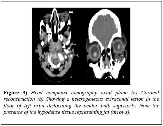 experimental-medicine-Head-computed