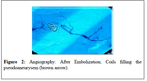 general-surgery-After-embolization