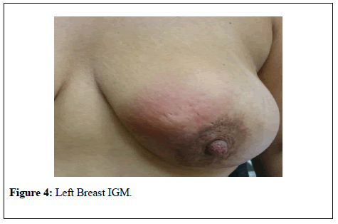 general-surgery-Left-Breast
