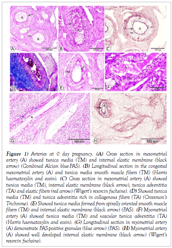 histology-histopathology-research-arteries-pregnancy-mesometrial