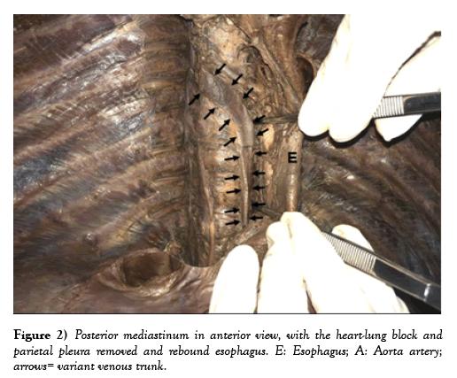 international-journal-anatomical-variations-heart-lung
