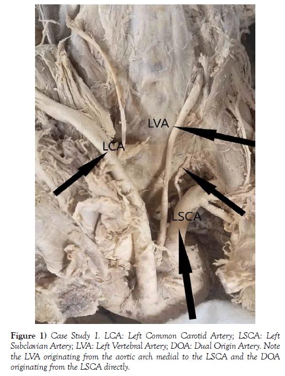 journal-anatomical-variations-carotid-artery