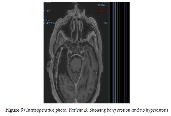 neurosurgery-Showing-bony-erosion