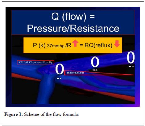 phlebology-lymphology-flow-formula