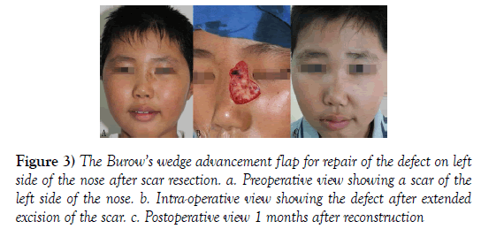 surgery-case-report-Preoperative-view